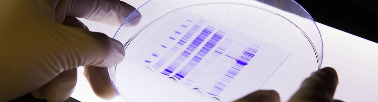 Forschung_EMA_Infektion_und_Entzuendungsforschung_big.jpg