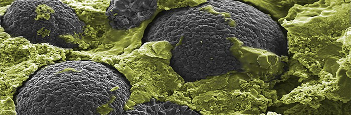 """Partikel eines Kathodenmaterials (Lithium-Nickel-Kobalt-Mangan-Oxid,, """"NCM"""" , grau) in einer Matrix aus Festkörperelektrolyt (Lithium-Thiosulfat, gelb eingefärbt ) zum Einsatz in Festkörperbatterien (Photo: Raimund Koerver)"""
